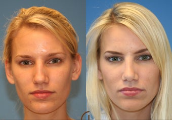 rhinoplasty before 282935
