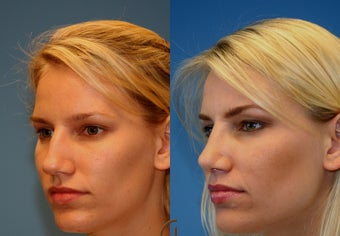 rhinoplasty after 282935