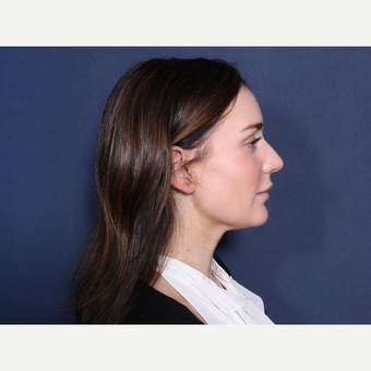 25-34 year old woman treated with Rhinoplasty (view 2 of 2) after 3781551