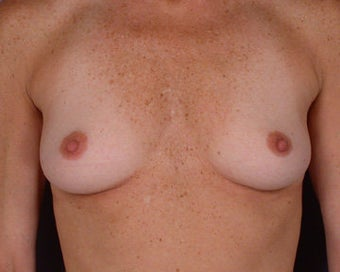Breast Augmentation before 281418