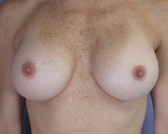 Breast Augmentation after 281418