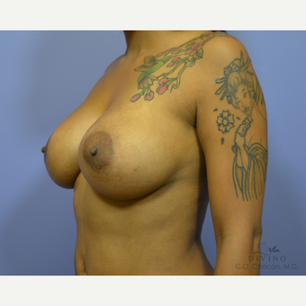 35-44 year old woman treated with Breast Implant Revision after 3415843