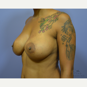35-44 year old woman treated with Breast Implant Revision before 3415843