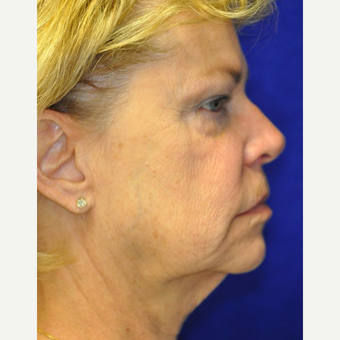 55-64 year old woman treated with Facelift before 3844206