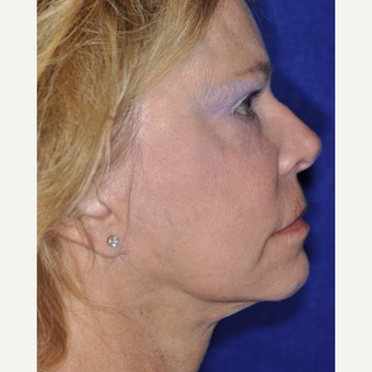 55-64 year old woman treated with Facelift after 3844206