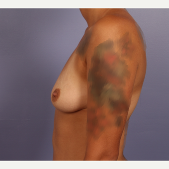 18-24 year old woman treated with Breast Augmentation before 3502493