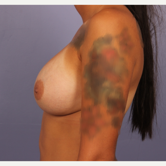 18-24 year old woman treated with Breast Augmentation after 3502493