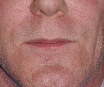 50 Year old Male Treated For A Thin Upper Lip