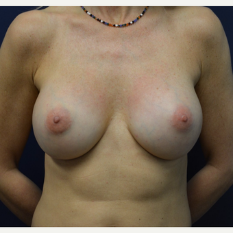 45-54 year old woman treated with Breast Implant Revision after 3098420