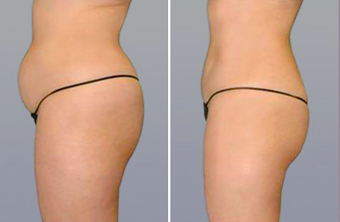 SmartLipo before 996918