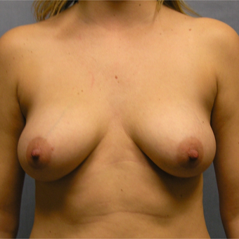 25-34 year old woman treated with Breast Implants before 3174581