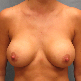 25-34 year old woman treated with Breast Implants after 3174581