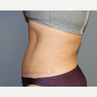 Tummy Tuck and Liposuction after 3027163
