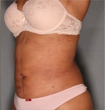 36 year old woman treated with Smart Lipo after 1811420