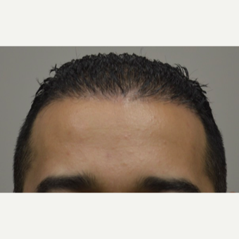 35-44 year old man treated with FUE Hair Transplant after 3745505
