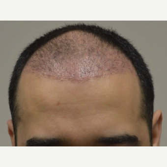 35-44 year old man treated with FUE Hair Transplant before 3745505