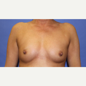 45-54 year old woman treated with Breast Augmentation before 3201115
