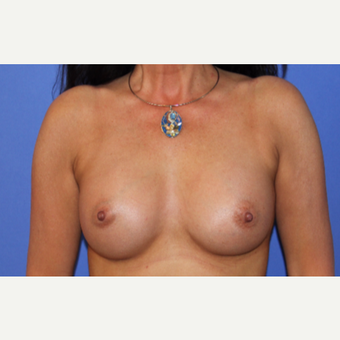 45-54 year old woman treated with Breast Augmentation after 3201115