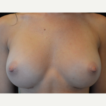35-44 year old woman treated with Breast Augmentation after 3686961