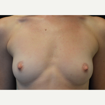 35-44 year old woman treated with Breast Augmentation before 3686961