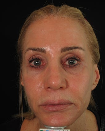 Artefill, Juvederm, Botox - Liquid Face Lift after 1154614