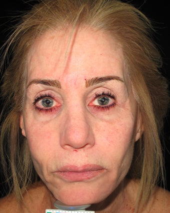 Artefill, Juvederm, Botox - Liquid Face Lift before 1154614