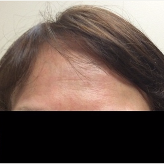55-64 year old woman treated with Wrinkle Treatment after 2762462