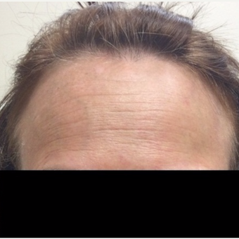 55-64 year old woman treated with Wrinkle Treatment before 2762462
