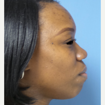 35-44 year old woman treated with African American Rhinoplasty before 3169285