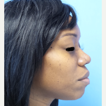 35-44 year old woman treated with African American Rhinoplasty after 3169285