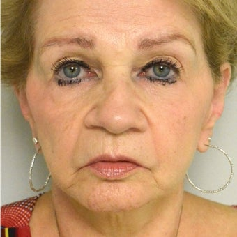 65-74 year old woman treated with Juvederm before 2113052