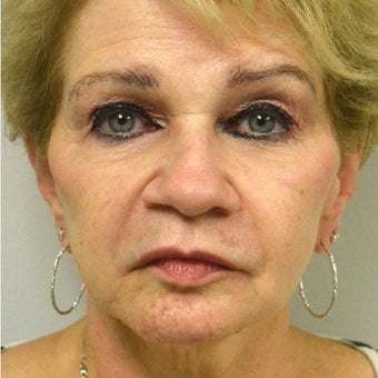 65-74 year old woman treated with Juvederm after 2113052
