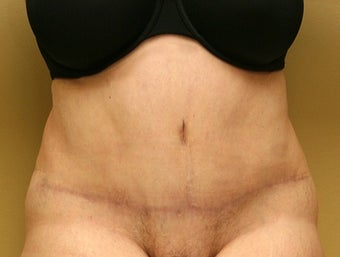 55-64 year old woman treated with Tummy Tuck after 1762281