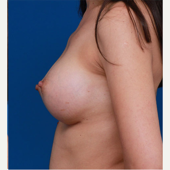25-34 year old woman treated with Breast Augmentation after 3167743
