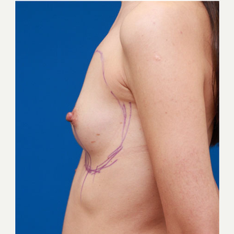 25-34 year old woman treated with Breast Augmentation before 3167743