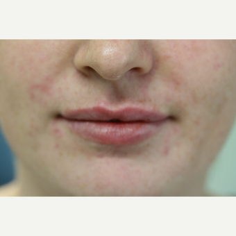 25-34 year old woman treated with Restylane Silk after 2989550