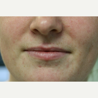 25-34 year old woman treated with Restylane Silk before 2989550