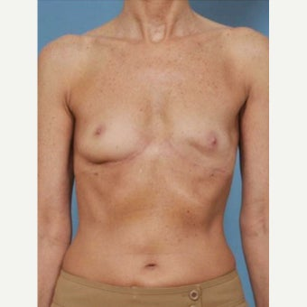 45-54 year old woman treated with Breast Fat Transfer before 2286240