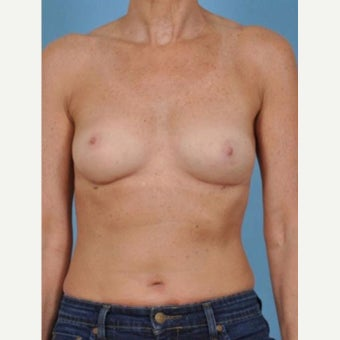 45-54 year old woman treated with Breast Fat Transfer after 2286240