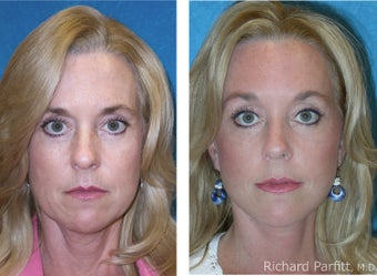 Brow lift (Forehead lift) combined with Facelift before 1116049