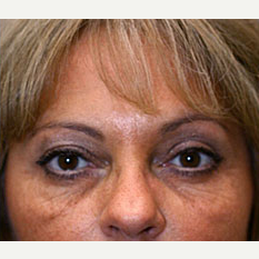 45-54 year old woman treated with Botox after 3604256