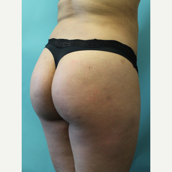 18-24 year old woman treated with Smart Lipo after 3437459