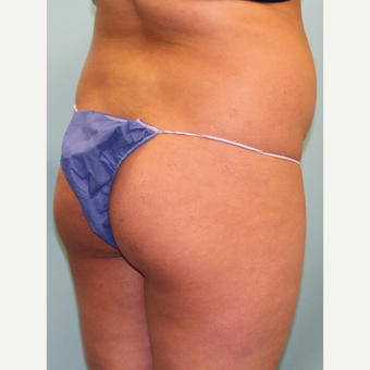 18-24 year old woman treated with Smart Lipo before 3437459