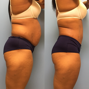 31 year-old woman treated with Tummy Tuck and Lipo 360 before 3487708