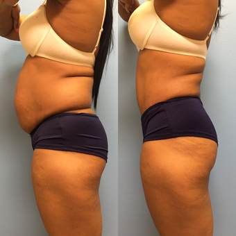 31 year-old woman treated with Tummy Tuck and Lipo 360 after 3487708