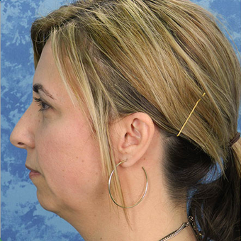 Chin Surgery before 3124378