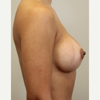 27 year old woman treated with Breast Augmentation after 3689601
