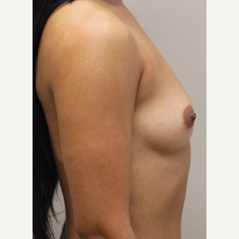 27 year old woman treated with Breast Augmentation before 3689601