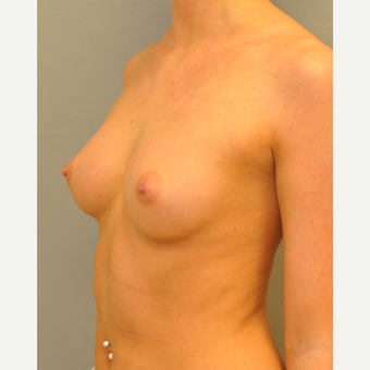 25-34 year old woman treated with Breast Augmentation before 3842334