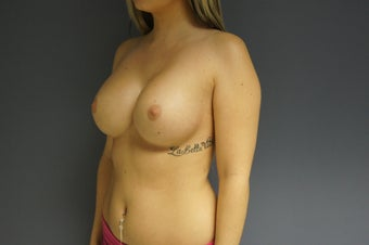 19yo Breast Augmentation 989582